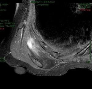RNM con mdc: elastofibroma dorsi dx (foto 2)