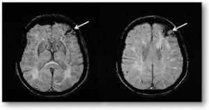ictus ischemico fronto-temporale sin. (immagine TAC da: C.J.C.)