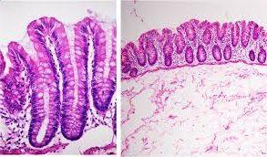 Villi intestinali (da www.molinorosso.com)