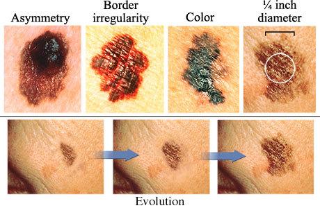 melanoma (fonte)
