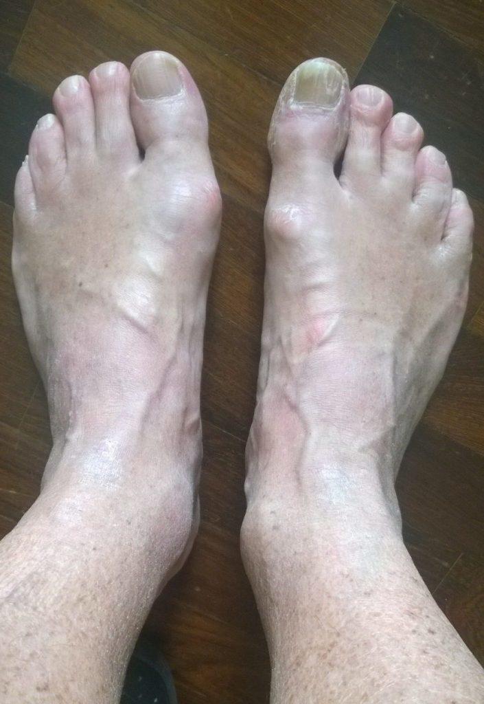 artrite alluce sin - artrosi alluce dx con micosi ungueale