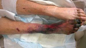 gangrena secca e umida-trombosi a. poplitea