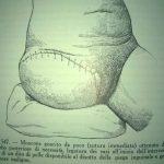 disarticolazione arto inf. dx (Testut e Jacob, 1908)