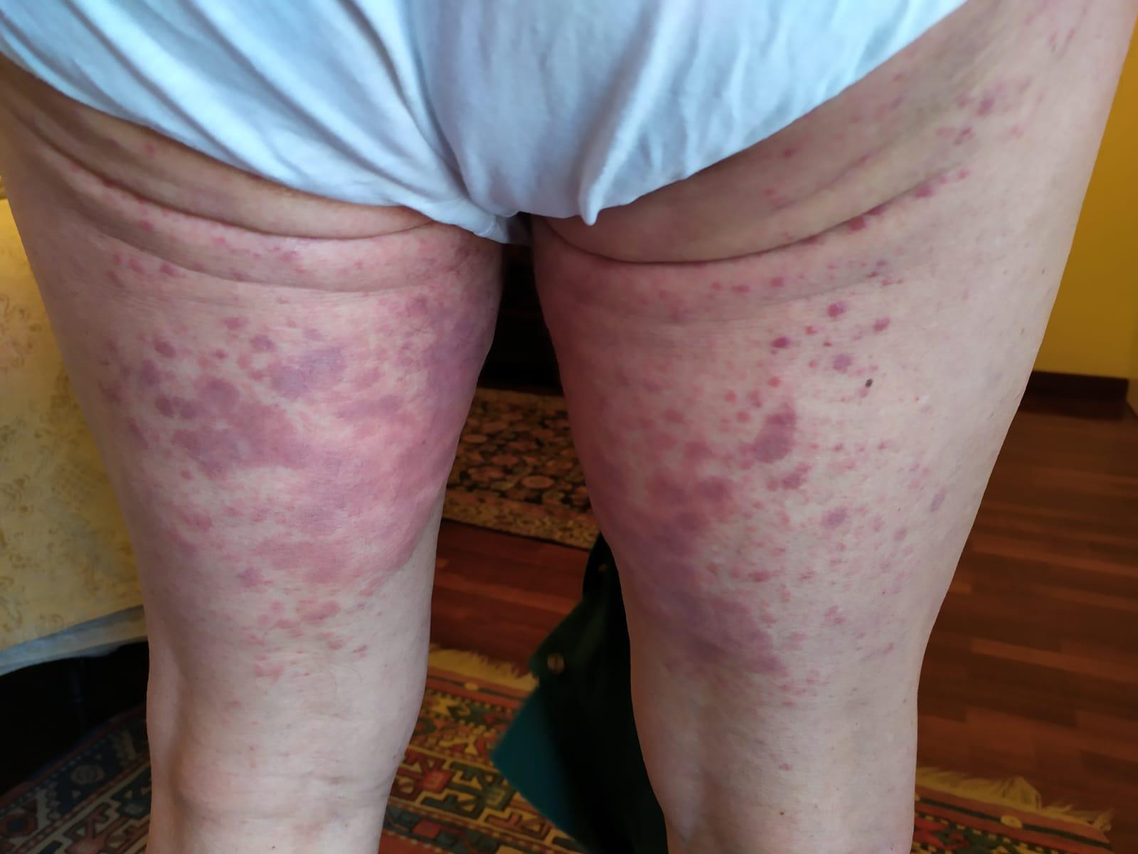 Dermatite papulo-eritematosa pre-diagnosi Covid-19