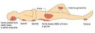 Lesioni da decubito (pressione)