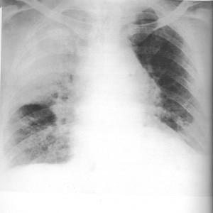 Rx polmonite dx da cocchi