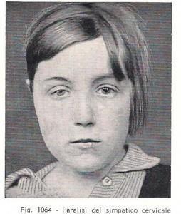 S. di B.- Horner da H. Bailey, Semeiotica Chirurgica, 1965