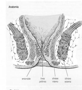 Trombosi di nodo gemorroidalny esterno di 1 grado