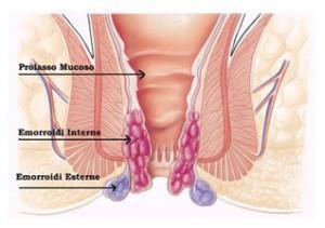 Eliminazione di anestesia di emorroidi